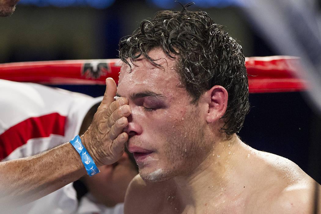 Julio Cesar Chávez Jr. es atendido tras recibir algunos golpes de su adversario el sábado, 6 de mayo de 2017, en Las Vegas. | Erik Verduzco/ Las Vegas Review- Journal