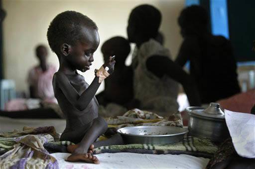 En esta foto de archivo, Abril 8, 2010, se ve al niño de 2 años de edad de nombre Nyagod Kuel, quien intenta comer en su cama de hospital en  la población de Akobo, al sureste de Sudan. Las nac ...