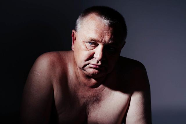 La prostatitis, provocada por una infección, debe ser tratada por un médico. (Agencias).