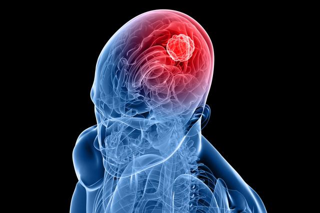 Científicos médicos desarrollan una nueva terapia con células para tratar el cáncer del cerebro. (Agencias).