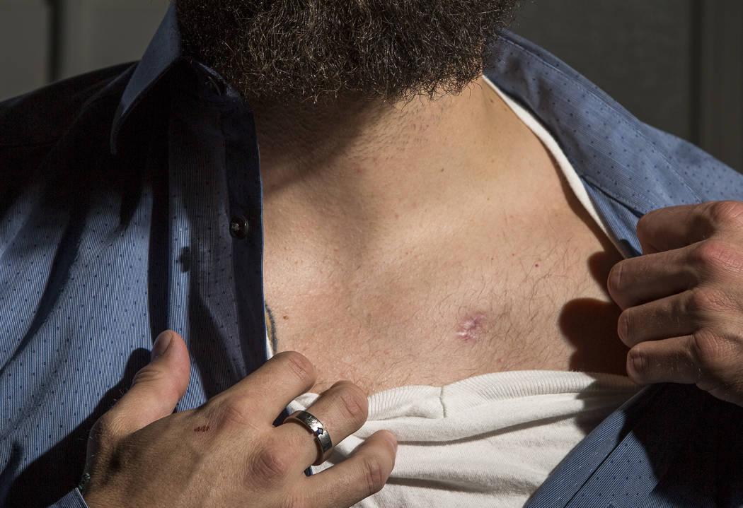 William King, un superviviente del tiroteo en el festival Route 91 Harvest, muestra su herida de bala en su casa de Summerlin el miércoles 31 de enero de 2018. Patrick Connolly Las Vegas Review-J ...