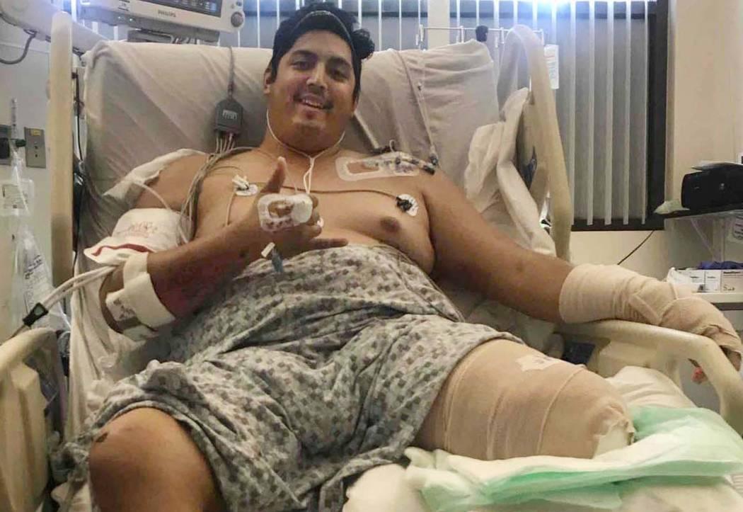 A Tim Gierczic le amputaron la pierna izquierda por debajo de la rodilla después de que se lesionó cuando un conductor de una camioneta lo golpeó mientras conducía su motocicleta en marzo, des ...