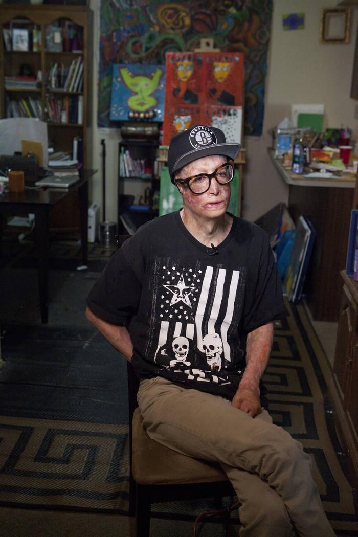 """El artista Dave Dave habla sobre su serie de pintura """"Lifted"""" en su apartamento de Las Vegas el miércoles 20 de junio de 2016. Su padre intentó matarlo cuando tenía seis años al prenderle fueg ..."""