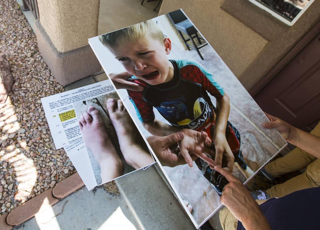 Brandon Hulet tiene fotos de su hijo Mason después de ser picado por una abeja, que se mostraron en una reciente reunión del consejo municipal en Henderson el jueves 23 de agosto de 2018. El hij ...