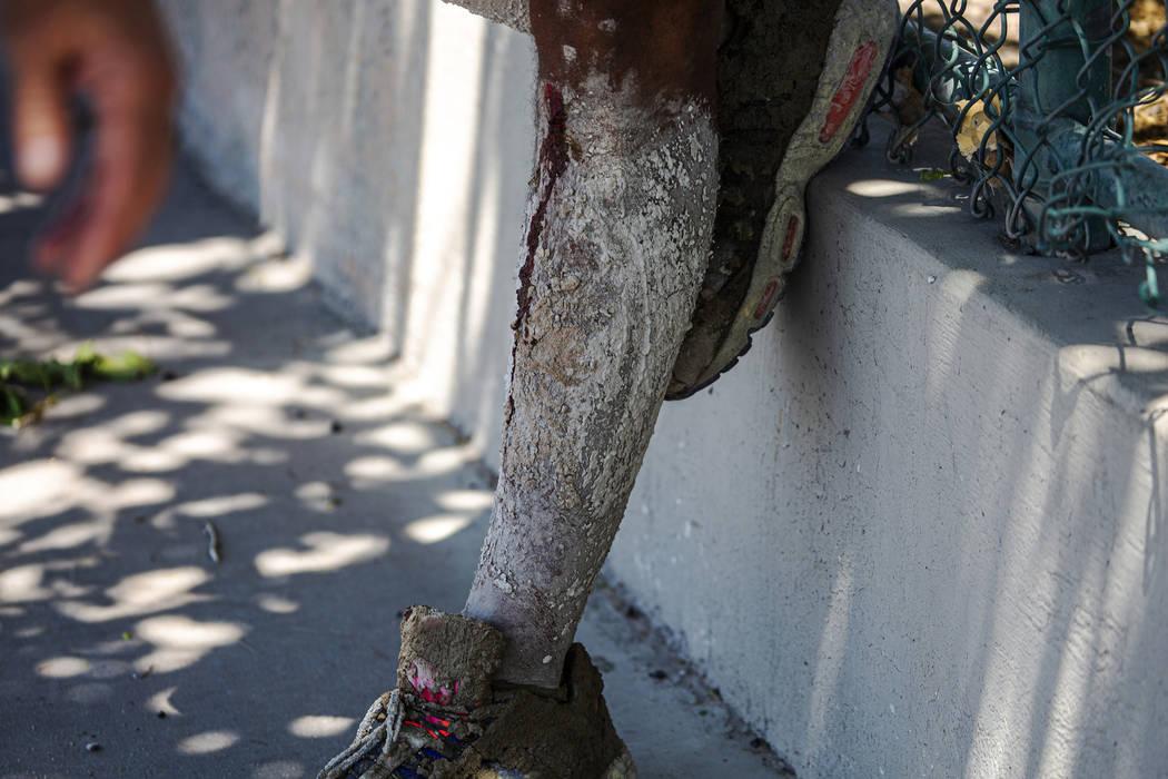 Las piernas de David Carnell están cubiertas de cemento después de ayudar a los niños herido ...