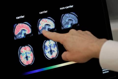 En esta foto de archivo del 14 de agosto de 2018, un médico observa una tomografía computariz ...