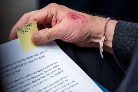 El gobernador Steve Sisolak con un corte y un moretón en su mano derecha mientras se prepara p ...